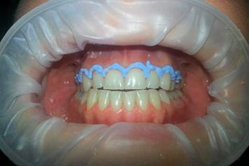 Dentadura de paciente